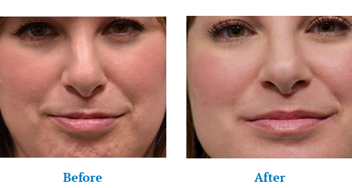 Botox® Orchard Park, NY - Botox Injection for Aging Skin