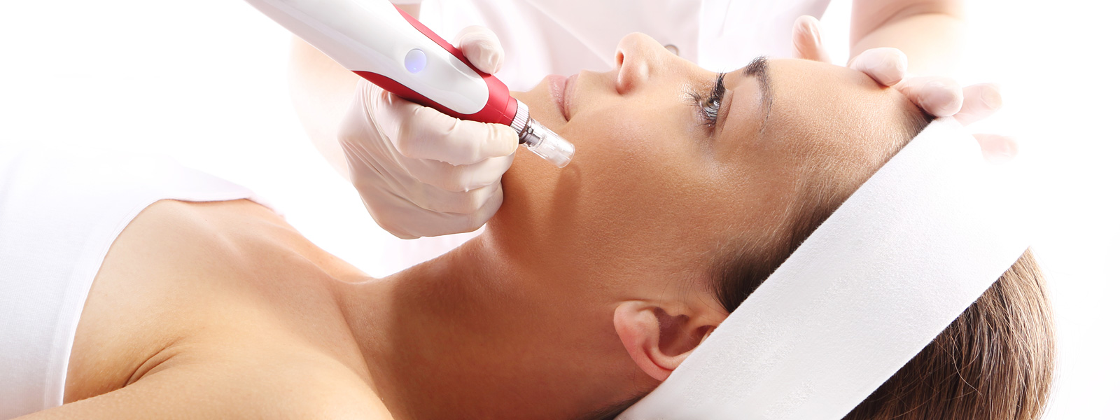 A Woman Having Microneedling Treatment