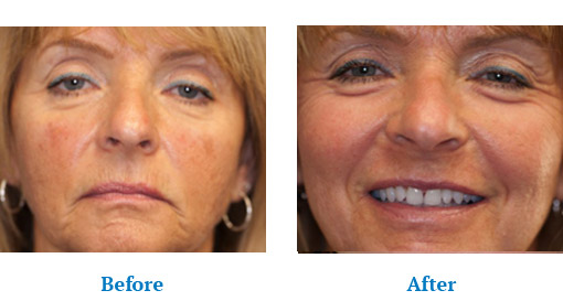 Before After Chemical Peels