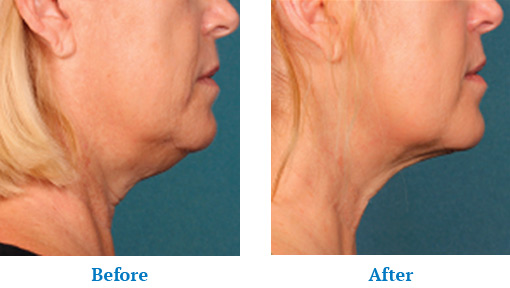 Before and After Kybella Treatment