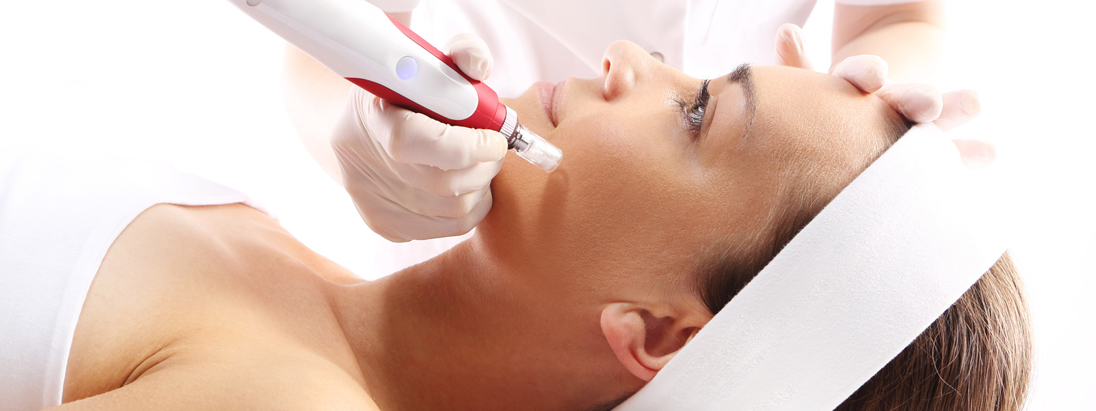 A Patient Having PRP Microneedling Treatment