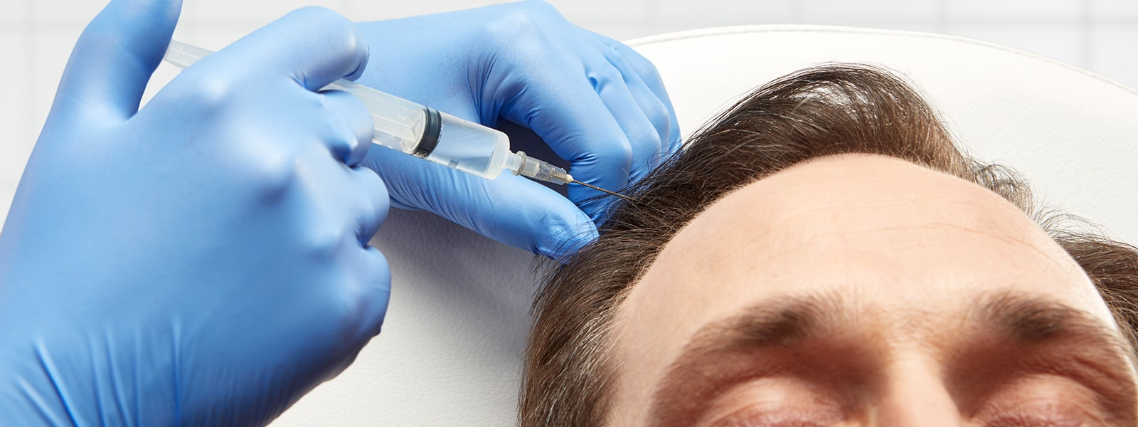 PRP is a natural solution for hair loss in Orchard Park