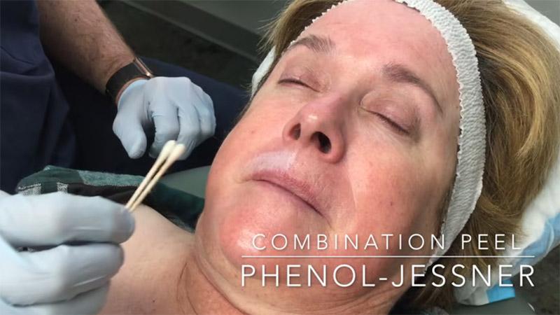 Facial skin rejuvenation by Phenol, Jessner Combination Peel