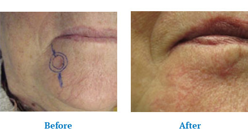Before after results of Skin Cancer Screening Orchard Park, NY