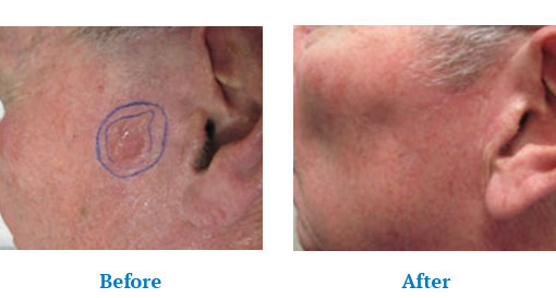 Before After results of Skin Cancer Treatment Orchard Park, NY