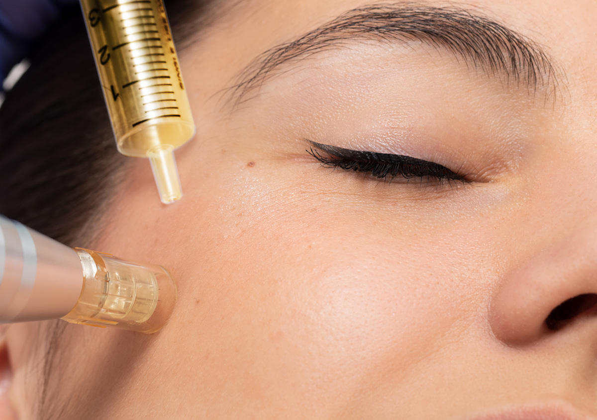 Smooth, glowing skin: amplify your micro needling results with PRP